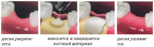 Для при удалении зуба коллаген